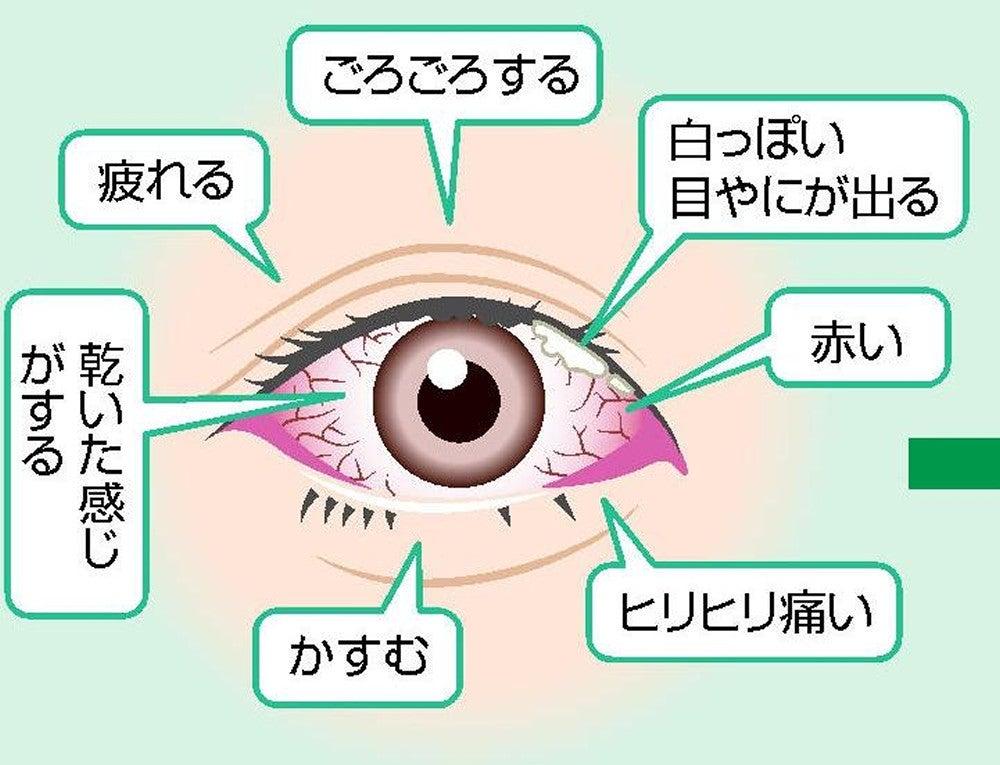 花粉 症 目やに 5.花粉性結膜炎の症状 花粉症と目 目についての健康情報